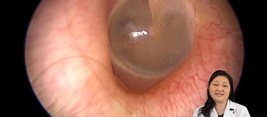 Trip down the ear canal